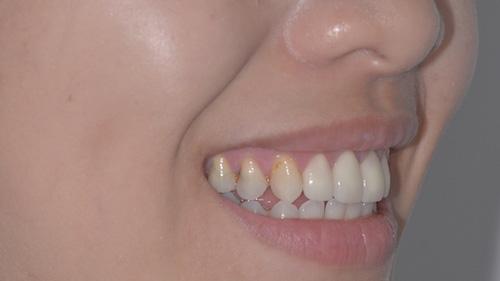 前牙美學精選案例-案例A