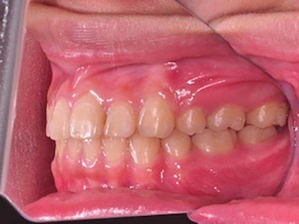 齒顎矯正案例A4