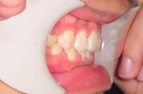 齒顎矯正案例B2