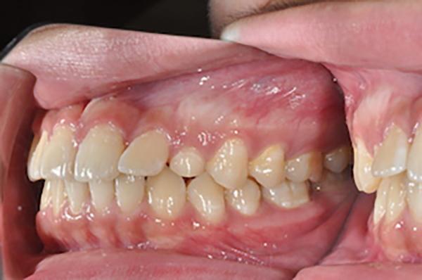 齒顎矯正案例B3