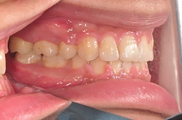 齒顎矯正案例B4