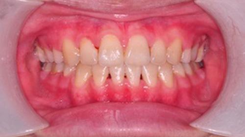 齒顎矯正精選案例-案例C