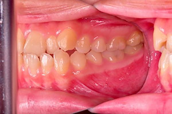 齒顎矯正案例C3
