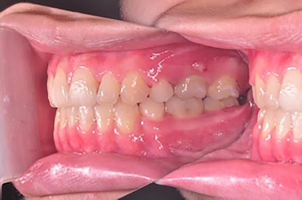 齒顎矯正案例C4