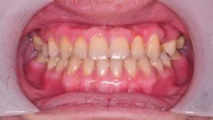 齒顎矯正案例D-small