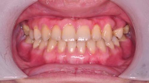 齒顎矯正精選案例-案例D
