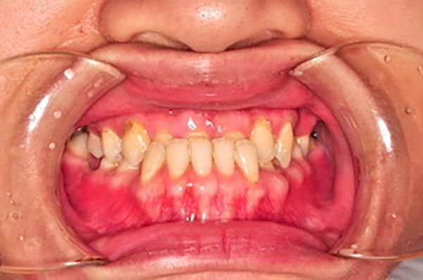 齒顎矯正案例D1