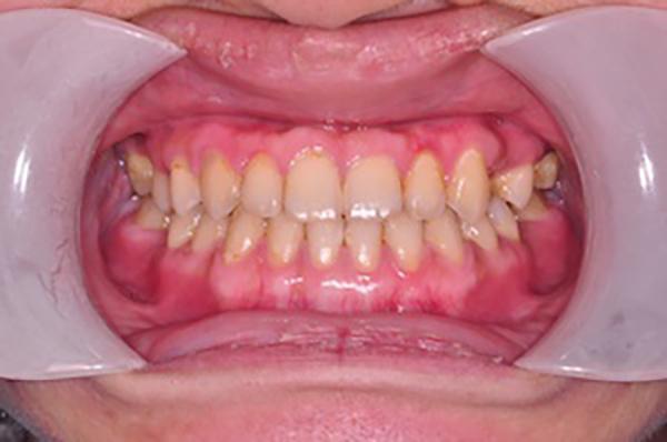 齒顎矯正案例D2