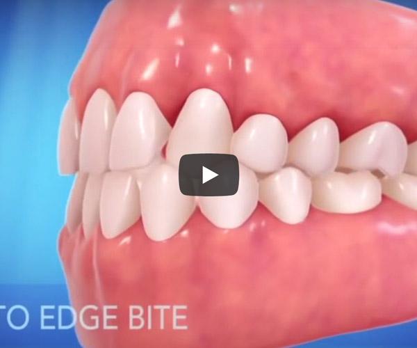 齒顎矯正3