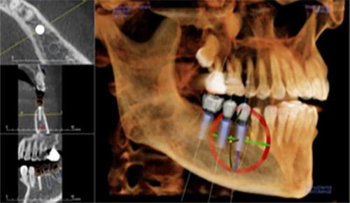3D數位導航植牙