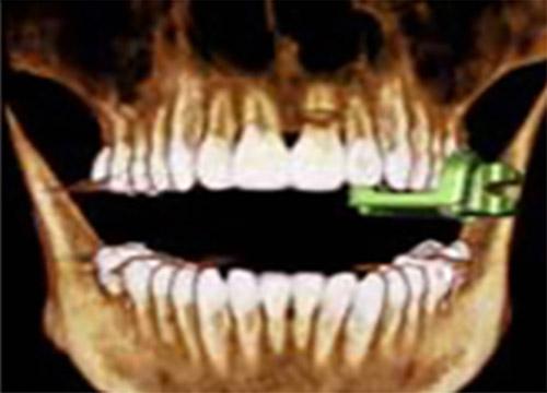 3D數位導航植牙-6