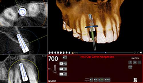3D數位導航植牙-9