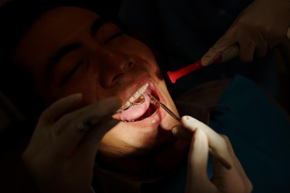 門牙缺牙怎麼辦?門牙缺牙矯正先還是可直接植牙呢?